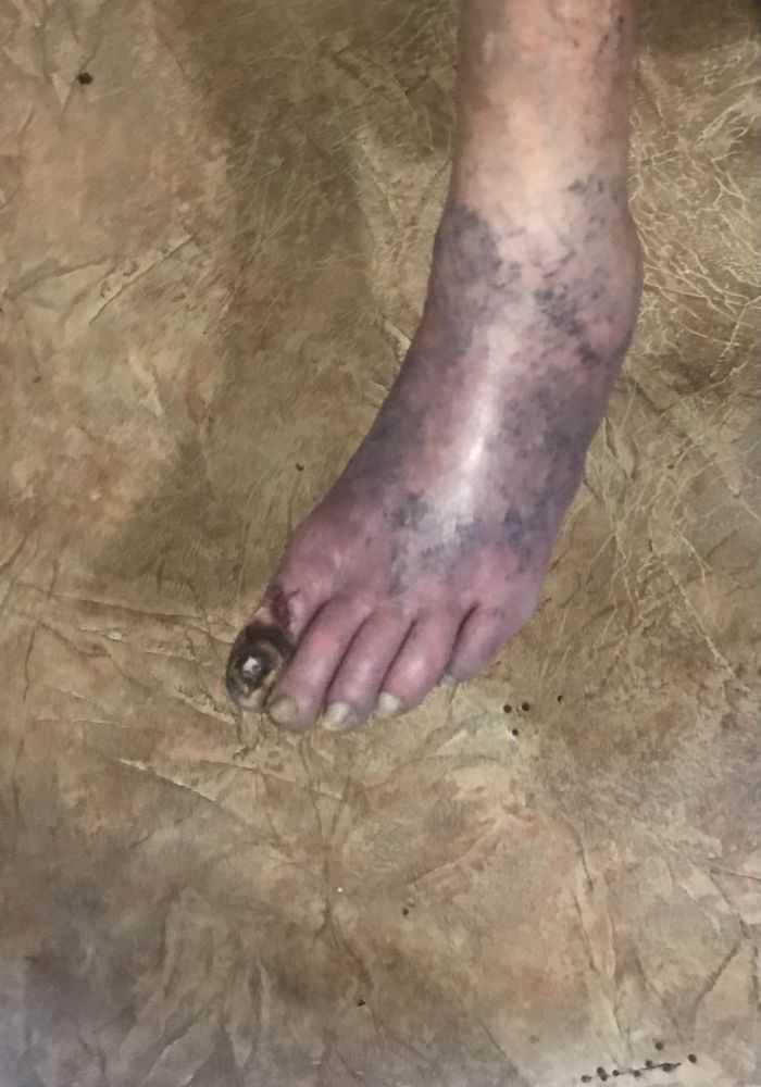 Здесь последствия того что не хотят ничего делать !! Нога моей бабушки которую врачи запустили
